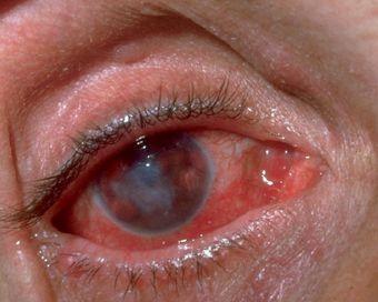 Окулогландулярный синдром Парино