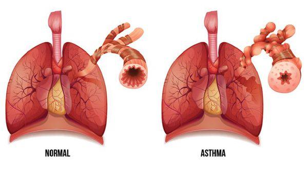 Дыхательные пути в норме и при астме