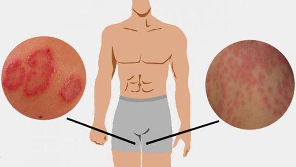 Грибковое заболевание кожи