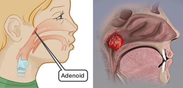 Аденоиды и аденоидит