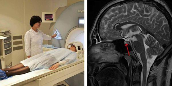 Аденома гипофиза на МРТ