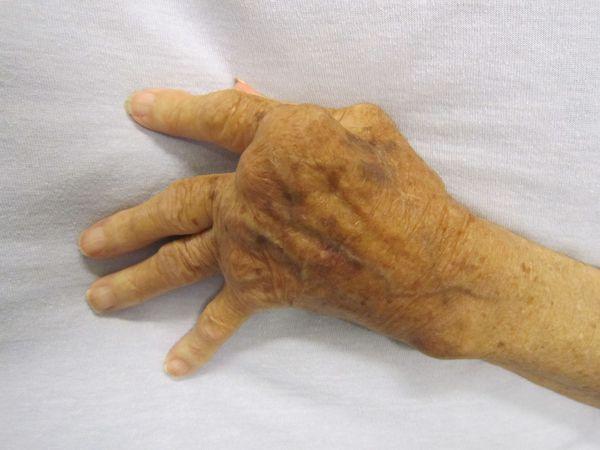 Деформирующий артрит