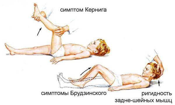 Признаки поражения нервной системы при бруцеллёзе