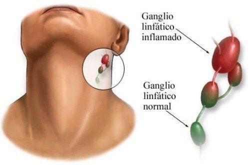 Увеличенные лимфоузлы у беременных на шее 32