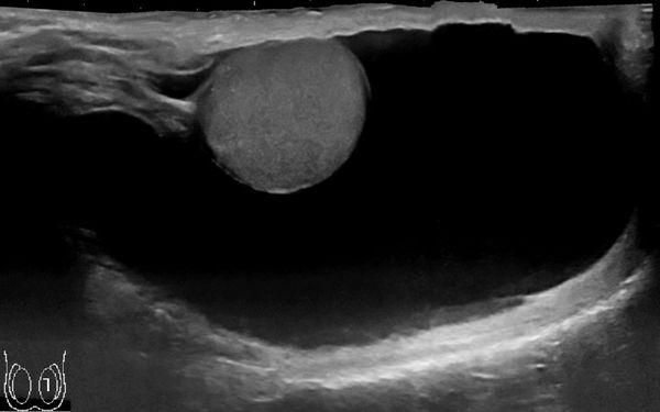 Ультразвуковое исследование мошонки с гидроцеле