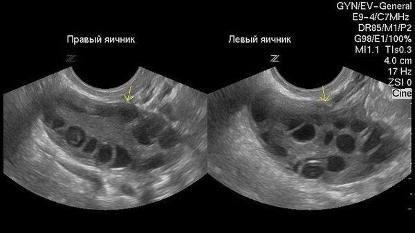 Яичники при ультразвуковом исследовании