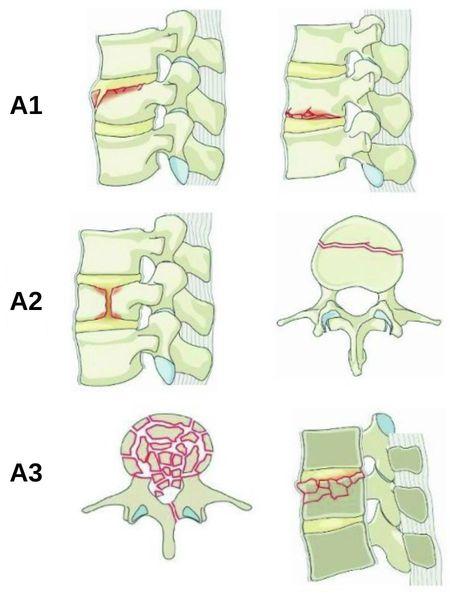 Типы компрессионного перелома позвоночника (AO Spine)