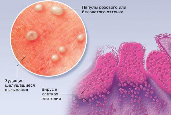 Контагиозный моллюск в клетках эпителия