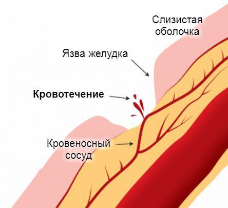 Кровотечение на фоне язвы желудка