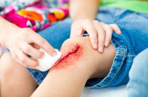 Открытая рана на колене