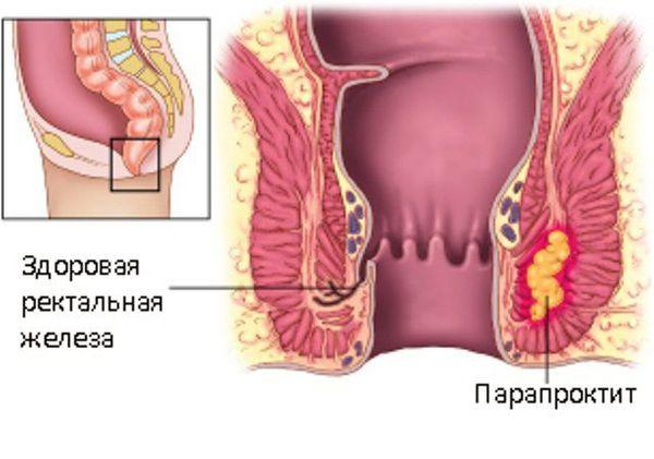 Здоровая ректальная железа и парапроктит