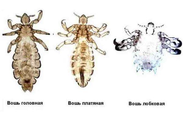 Три вида вшей