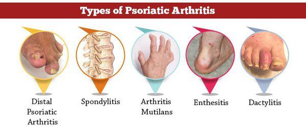 Виды псориатического артрита