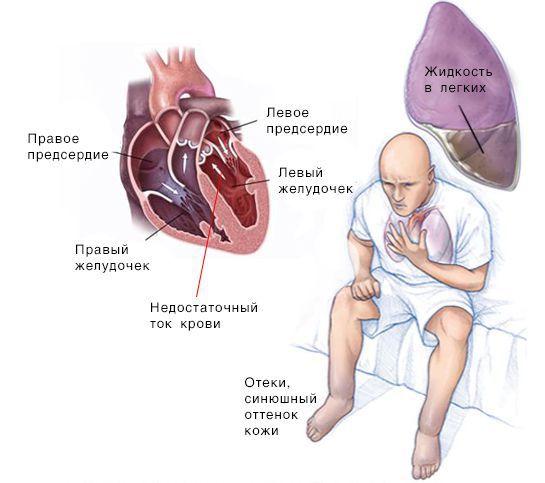 Строение сердца и сердечная недостаточность