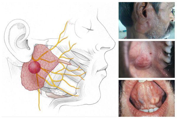 Опухоли слюнной железы