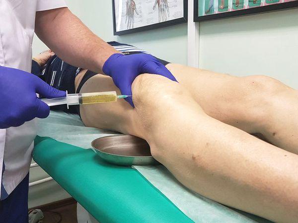 Диагностическая пункция коленного сустава