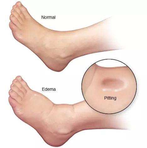 Отёк ноги при циррозе печени