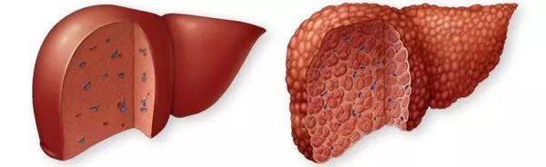 Замещение клеток печени рубцовой тканью