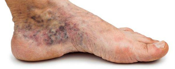 Цвет кожи при развитии диабетической стопы