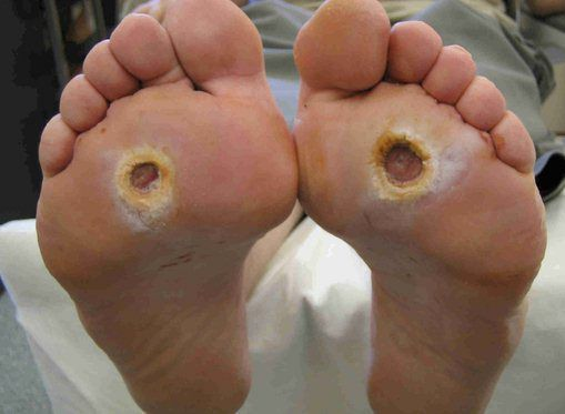Нейропатические инфицированные стопы