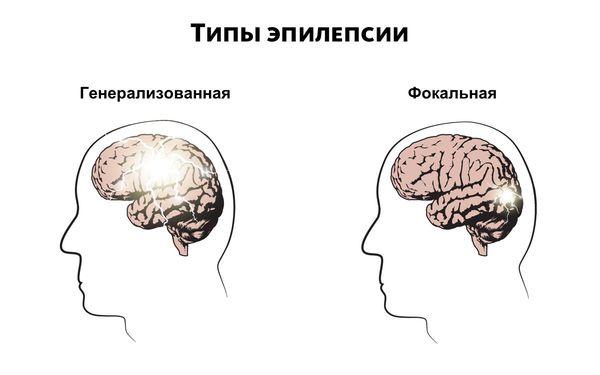 Типы эпилепсии