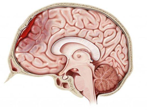 Гематома головного мозга