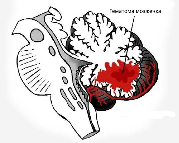 Гематома мозжечка