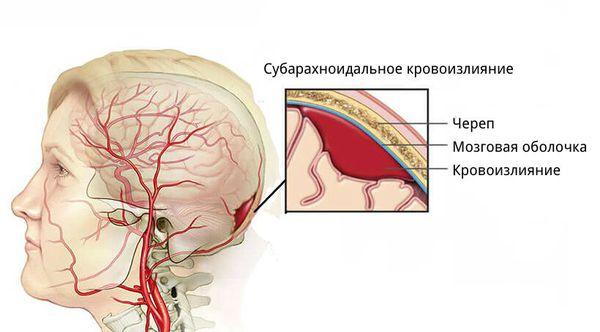 Кровоизлияние в субарахноидальное пространство