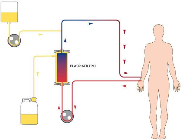 Механизм плазмафереза при лечении гепатита А