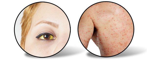 Признаки желтушного периода гепатита А