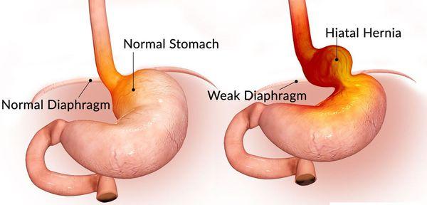 Смещение пищевода в грудную полость