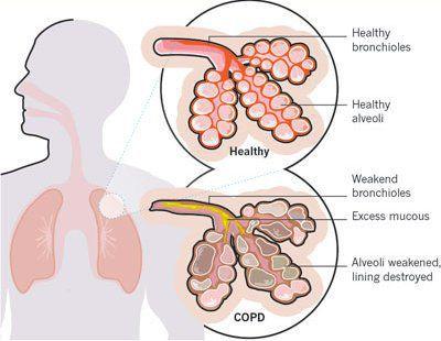 Обструктивное хроническое заболевание легких и бронхов thumbnail