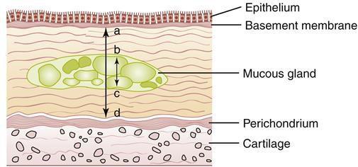 Процесс гиперплазии слизистых желёз бронхов с увеличением их толщины