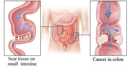 Спайки и опухоль кишечника
