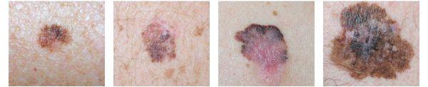 Поверхностно-распространяющаяся меланома