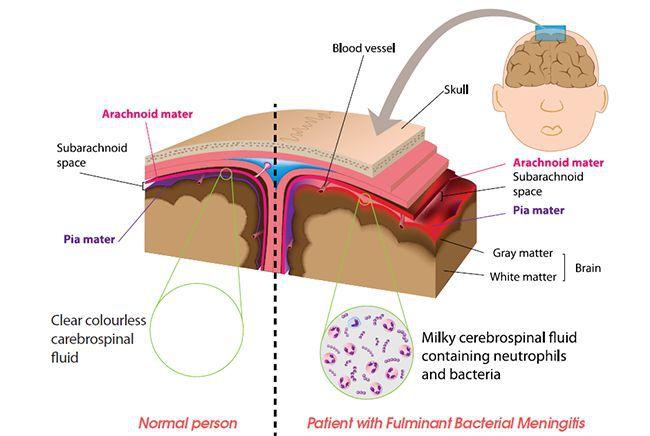 Здоровая мозговая оболочка/мозговая оболочка при менингите