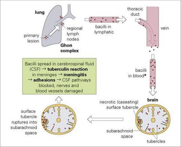 Туберкулезный менингит