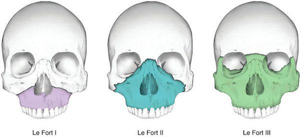 Классификация Ле Фор