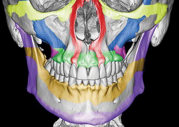 Контрфорсы верхней челюсти