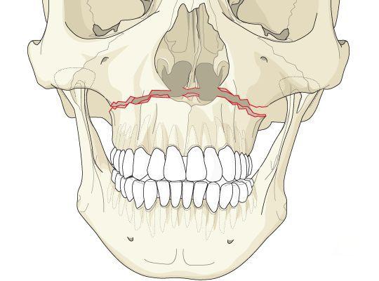 Нарушение анатомической целостности верхней челюсти