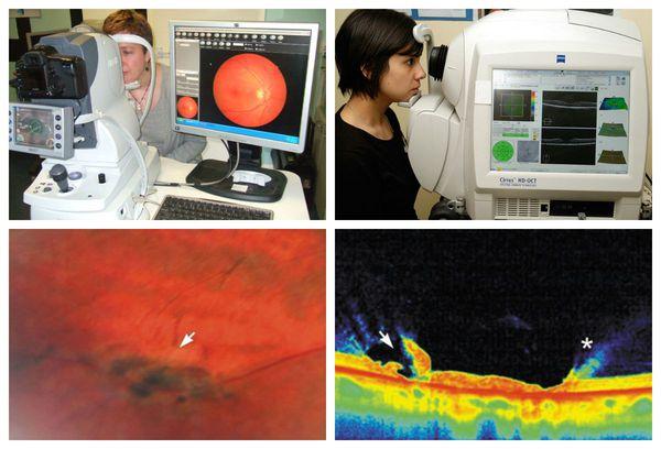 Исследование сетчатки с использованием фундус-камеры и проведение оптической когерентной томографии