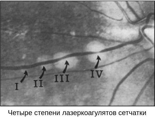 Результат успешного лечения периферической дистрофии сетчатки
