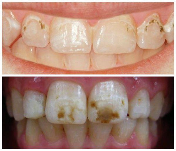 Пигментация на зубах как вылечить thumbnail