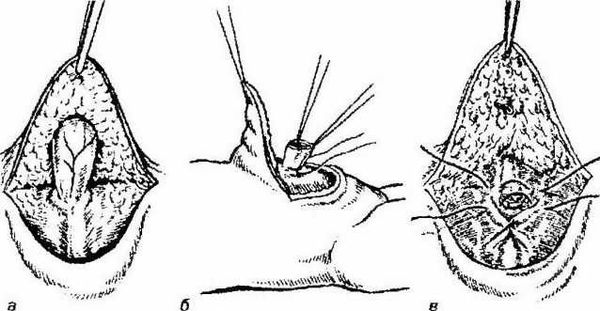 Операция по удалению пупочной грыжи