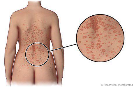 Розовый лишай/питириаз розовый/Жибера болезнь