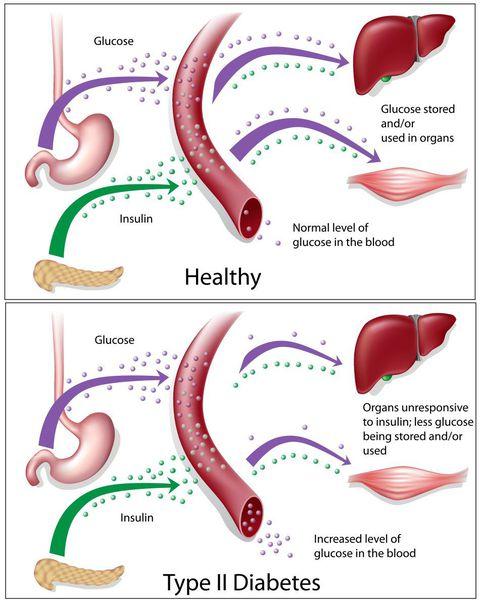 Нормальный и увеличенный уровень глюкозы в крови