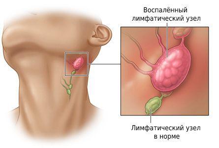 Шейный лимфаденит (воспаление лимфатических узлов)