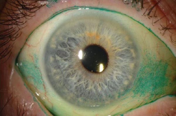Симптомы сухого глаза и его лечение thumbnail