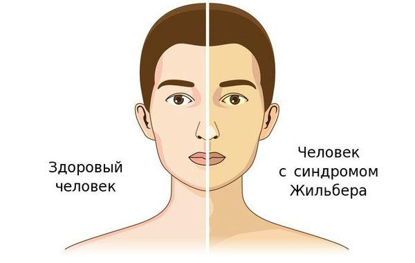 Здоровый человек и человек с синдромом Жильбера