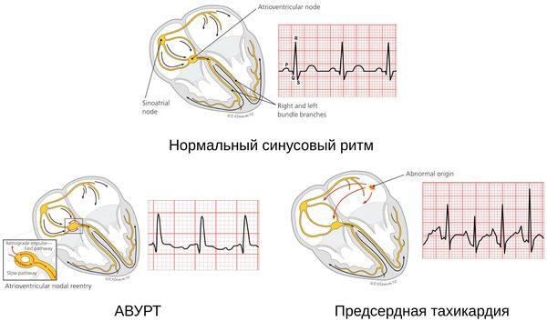 Классификация тахикардии
